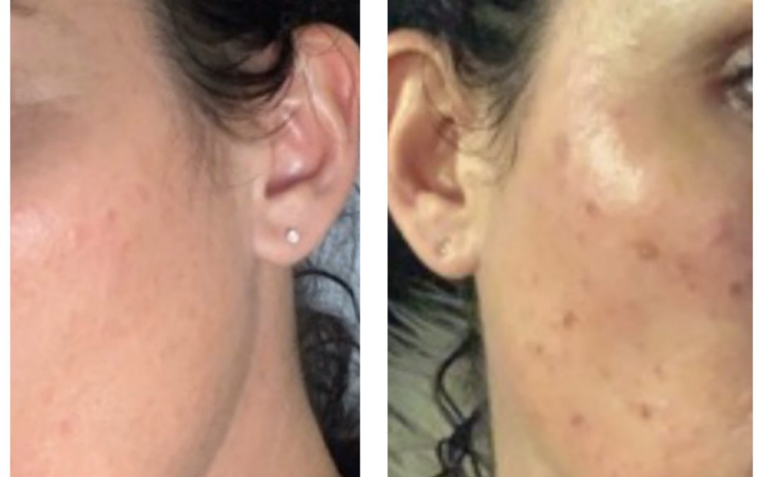 All you need to know about Sun Damage and Photo Rejuvenation.