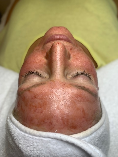 All you need to know about Micro-Needling.